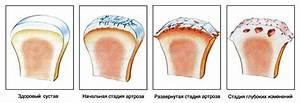Артроз плечевого сустава лечение народные методы лечения