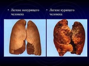 Крем здоров от геморроя купить в тольятти