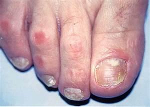 Грибок ногтей на ступнях фото