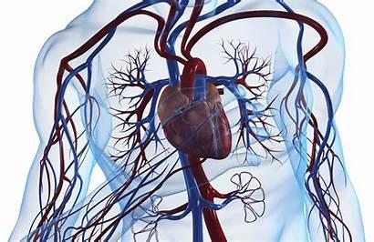 Cardiac Arrest Pci Early Rosc Cardiology Emra