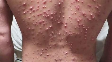 The Chickenpox Cheat Sheet And Faqs  Health 20 Blog. The Best Email Marketing Services. Design Your Own Photo Album Cover. Assisted Living Annapolis Cost Of Emr System. Testicular Cancer Tests Austin Grout Cleaning