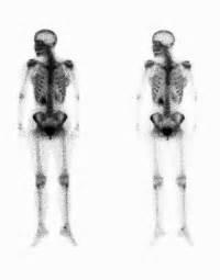 Bone Scan | Johns Hopkins Medicine