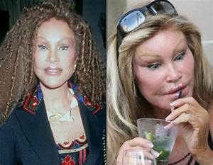 15 Celebrity Plastic Surgeries That Went Terribly Wrong