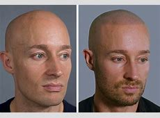 Receding hairlines, alopecia and baldness Would you get a