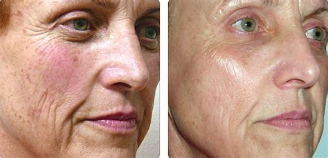photo for rosacea and pigmentation clarity medspa