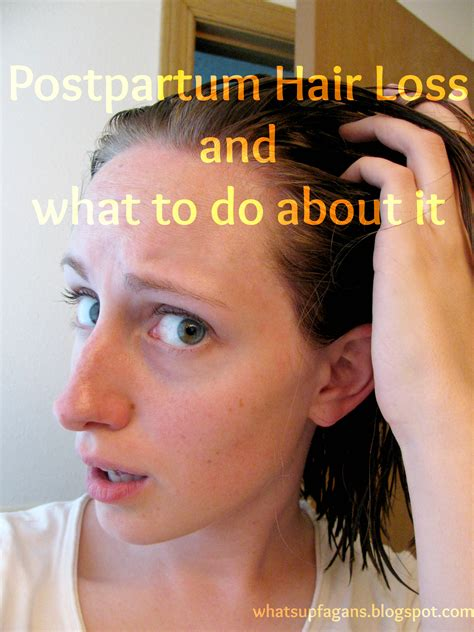 Postpartum Hair Loss Pictures Postpartum Hair Loss And How