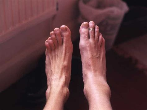 Foot Pain And Foot Problems