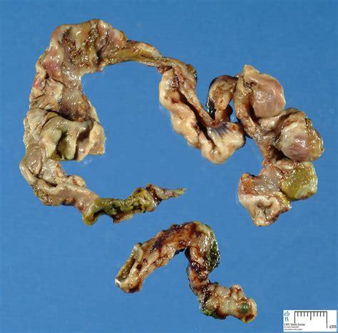 necrotizing enterocolitis humpathcom human pathology