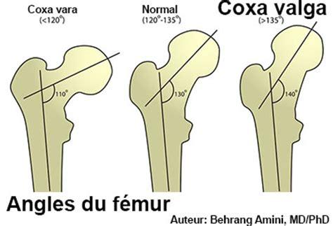 coxa valga symptomes traitement definition