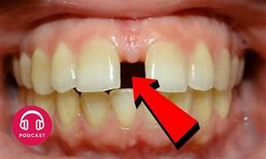Dents Qui Se Déchaussent Photos : pourquoi dit on les dents du bonheur choses savoir ~ Medecine-chirurgie-esthetiques.com Avis de Voitures