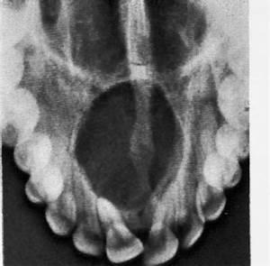 Incisive canal cyst (Nasopalatine duct cyst) - Dental ...