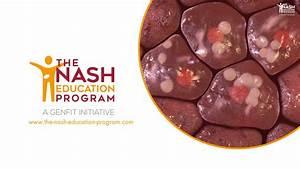 Liver Cirrhosis Secondary To Nash