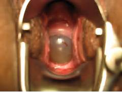 You may show original images and post about Cervix Dilation in here      Cervical Piercing
