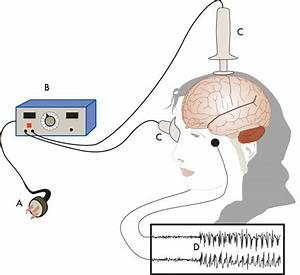 Electroconvulsive therapy Treatment (ECT)| Cadabam's Hospitals