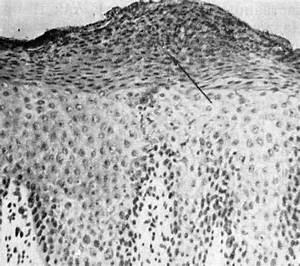 Морская соль при псориазе голова