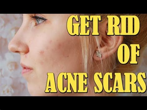 rid  acne scars fast  naturally overnight