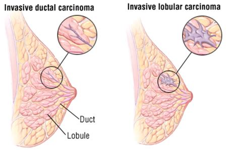 Milk Ducts In Breast Images Breast Cancer Guide Causes Symptoms And Treatment Options