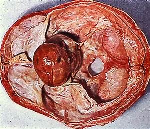 Гиперпролактинемия аденома гипофиза лечение