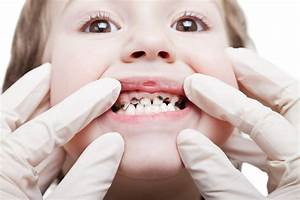 Facts About Childhood Tooth Decay | Pediatric Dentistry