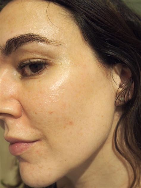 The Ordinary Results! Before and After Pictures