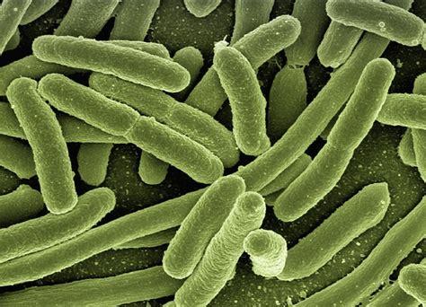 Koli Bacteria Escherichia Coli · Free Photo On Pixabay