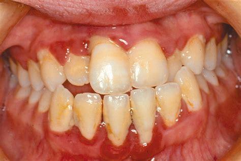 dental disease  children  chronic illness archives