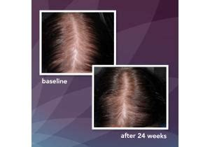 Amazon.com: Rogaine for Women Hair Regrowth Treatment Foam