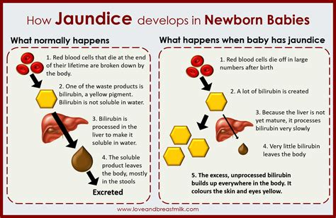Jaundice In Breast Fed Babies Love And Breast Milk
