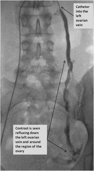 pelvic venous congestion syndrome bsir