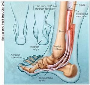 Here U0026 39 S What U0026 39 S Causing The Throbbing Pain In Your Feet