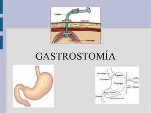 Gastrostomía: Definición, indicaciones, tipos, cuidados y complicacio