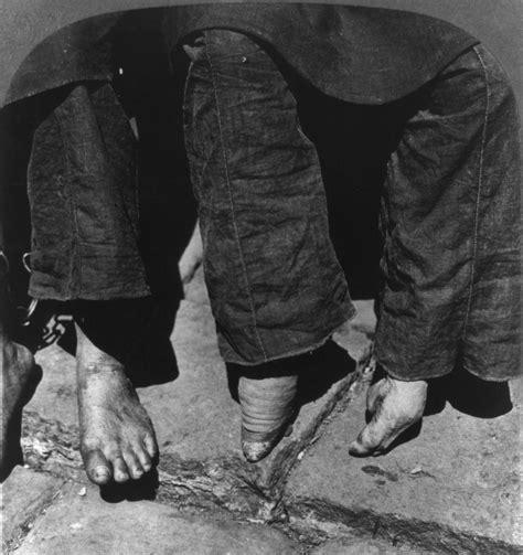 Foot Binding Of Chinas Women Mannaismaya Adventures Blog