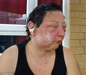 Woman39s Suffers Permanent Sight Damage After Allergic