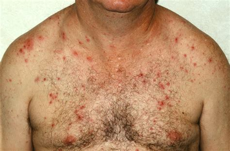 Folliculitis And Sycosis Causes Symptoms And Treatment