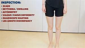 Knee Examination