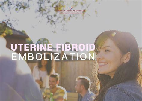 Uterine Fibroid Embolization Information