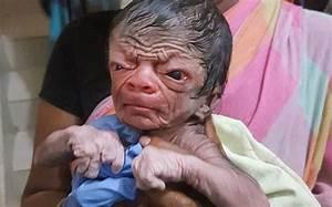 Meet Bangladesh's Benjamin Button, a newborn who resembles ...