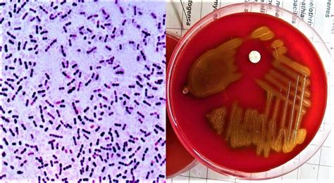 Morphology & Culture Characteristics Of Streptococcus