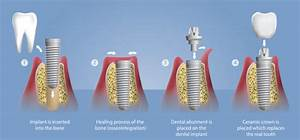 Single Tooth Dental Implants