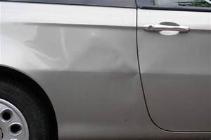 Débosseler Carrosserie Ventouse : portiere enfonc e ventouse blog sur les voitures ~ Medecine-chirurgie-esthetiques.com Avis de Voitures