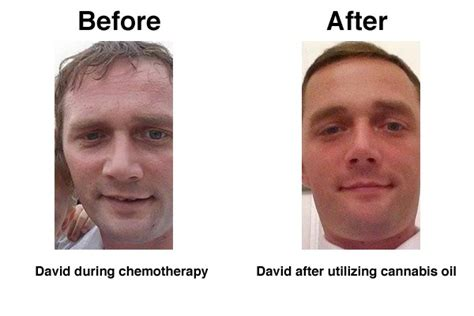 emu oil for hair loss after 3 man cures colon cancer with cannabis oil reset me