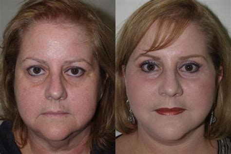 Laser Resurfacing  Miami, Fl  Patient 12526. Virtual Office San Diego It Consulting Dallas. Emc Converged Infrastructure. Assisted Living Tallahassee At&t Speed Test. Discount Domain Name Registration. Michigan Replacement Windows. Lead Generation Call Centers. Tulsa Center For Child Psychology. Mckaskle Family Dentistry Ottawa Payday Loans