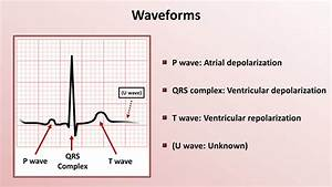 Intro To Ekg Interpretation - Waveforms  Segments  And Intervals