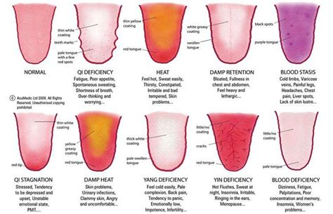what color should your tongue be the broad practice 187 tongue diagnosis what does
