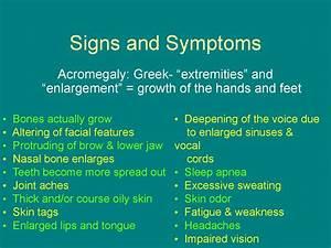 Acromegaly  Description