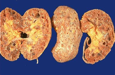 patologia del rinon  vias urinarias
