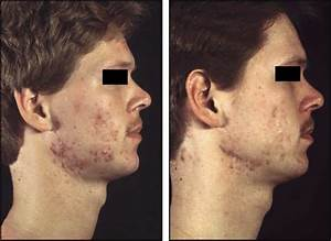 Severe acne papulopustulosa in a 21- year-old male patient ...
