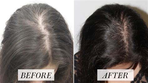 Platelet Rich Plasma Treatment for Hair Loss: Here's What
