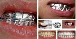 Dents Qui Se Déchaussent Photos : voil ce qui se passe quand vous enveloppez vos dents dans de l 39 aluminium pendant 30 minutes ~ Medecine-chirurgie-esthetiques.com Avis de Voitures