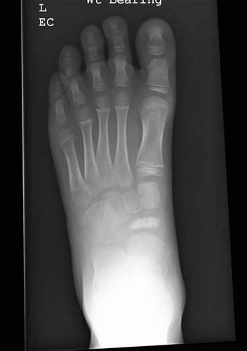 kohlers disease pediatrics orthobullets